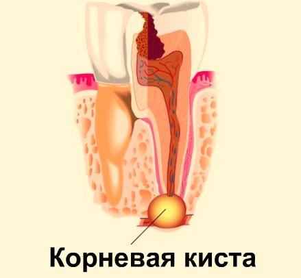 Удаление кисты зуба: как проходит процесс, противопоказания, фото ...