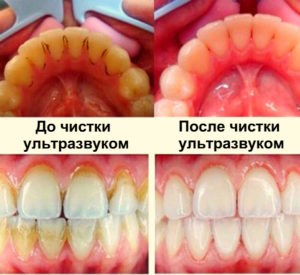 """Зубы """"до"""" и """"после"""" чистки ультразвуком"""