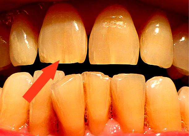 Полосы на зубах