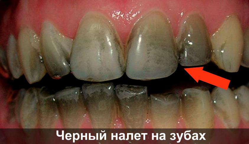 Черный налет на зубе фото