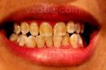 На зубе стерлась эмаль фото