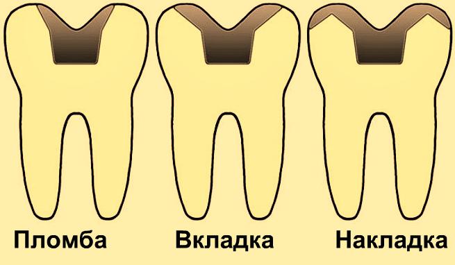 Схема расположения пломбы вкладки и накладки