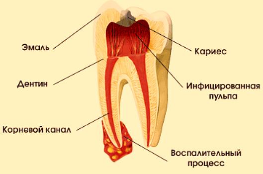 Гной в канале зуба