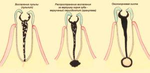 Околокорневая киста зуба