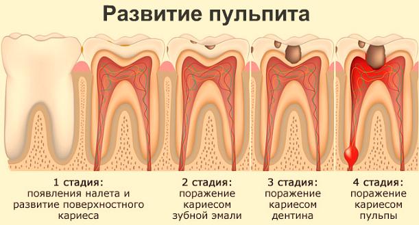 Пульпит: симптомы, причины возникновения, лечение, фото