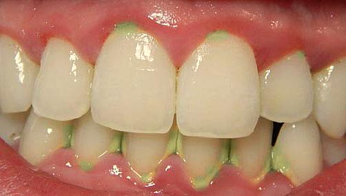 Зеленый налет на зубах фото