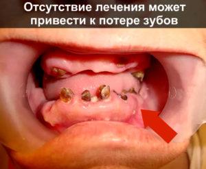 Отсутствие лечения может привести к потере зубов
