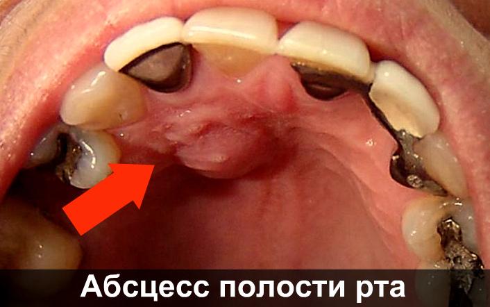 Абсцесс полости рта фото