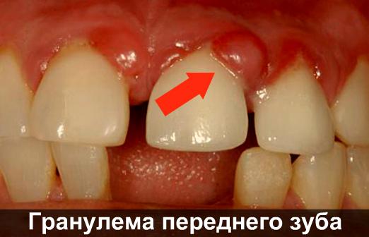 Последствия зубной боли