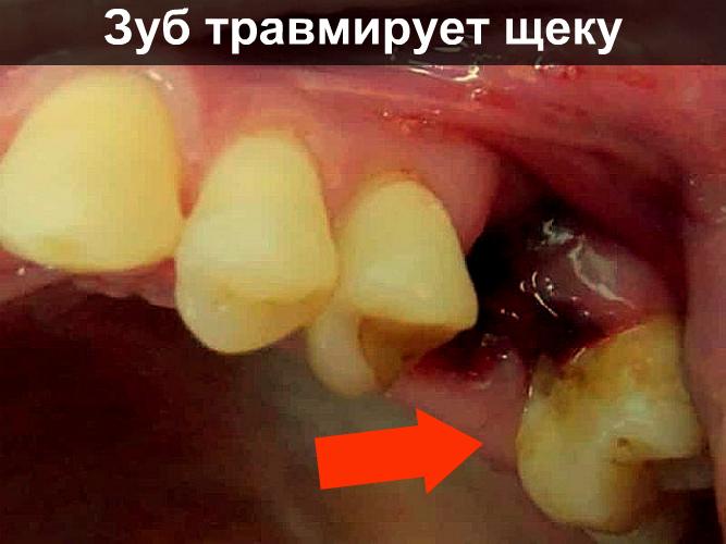 Зуб травмирует щеку фото