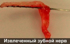 Удаленный зубной нерв фото