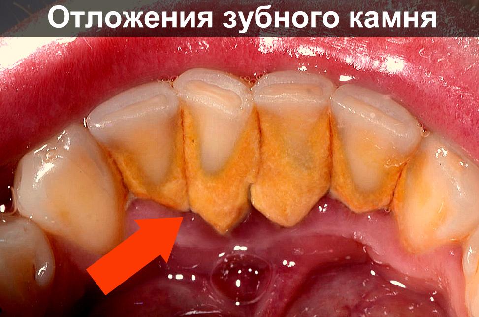 Как самостоятельно снять зубной камень