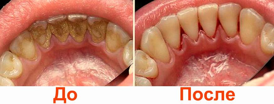 Удаление зубного камня нижний новгород