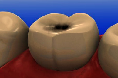 Коричневая точка на зубе фото