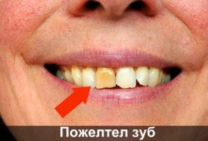 Пожелтел зуб фото