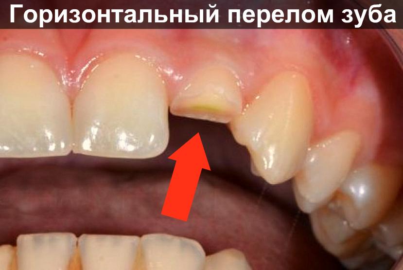 Сильная боль в зубе: причины и лечение   Взубе.ком