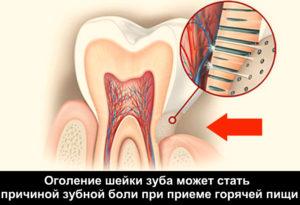 Болит зуб на горячее