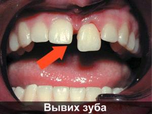 Вывих преднего зуба
