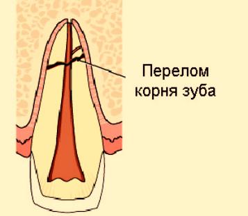 Сломался корень зуба