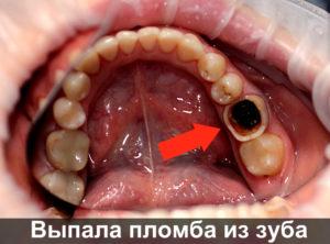Выпала пломба из зуба фото