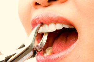Удаление зуба может справоцировать обильное кровотечение