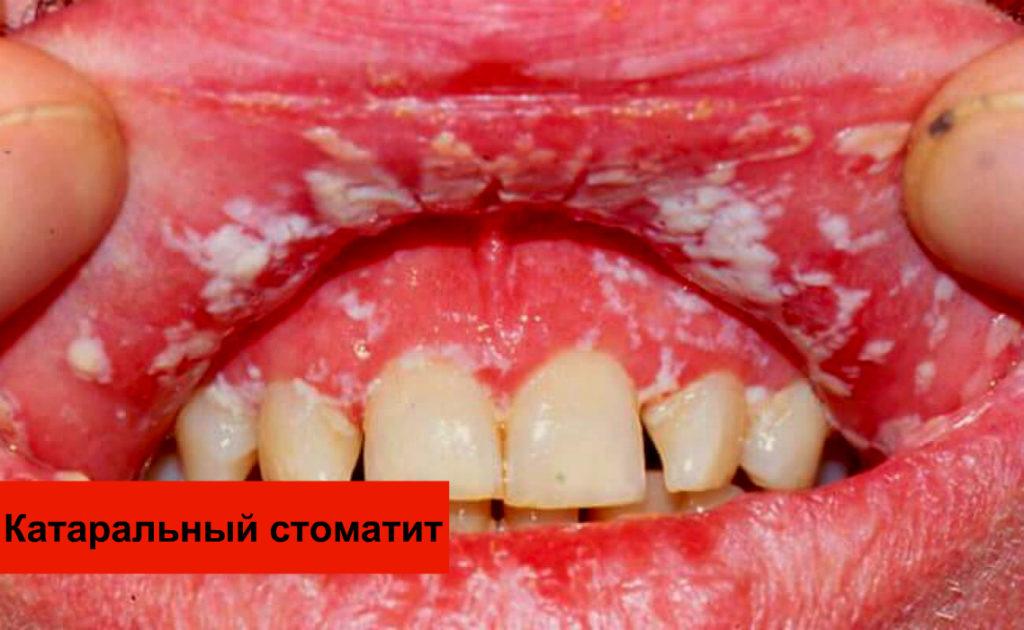 Катаральный стоматит