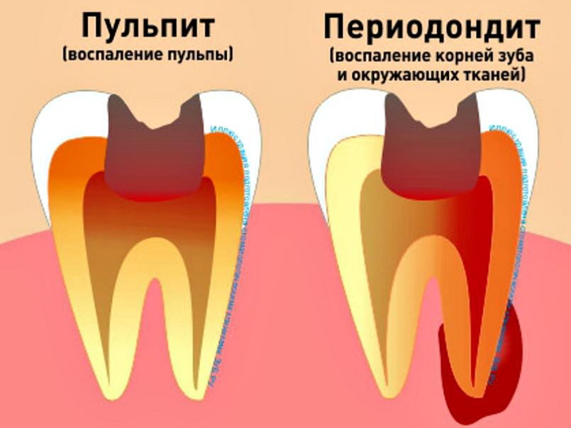 Лечение кариеса зубов спб