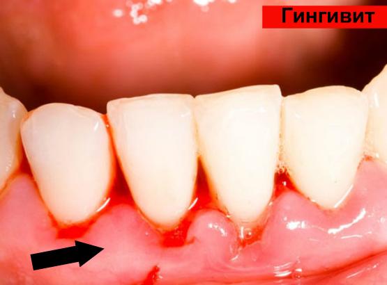 Идет кровь из зуба: причины и что делать?   Взубе.ком