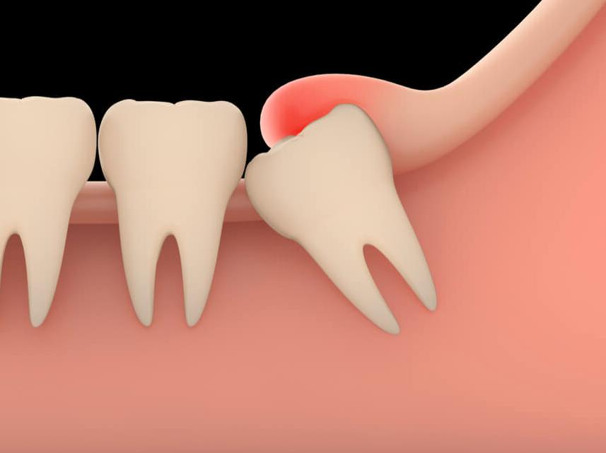 Здоровый зуб зарос десной