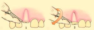 Удаление корня зуба фото