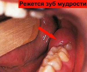 Лезет зуб мудрости, образуя опухоль