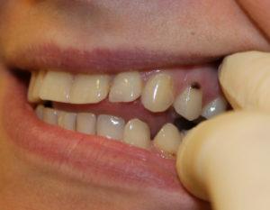 острая боль у шейки зуба фото