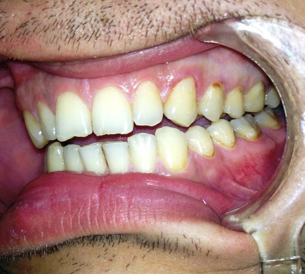 болит зубу шейки