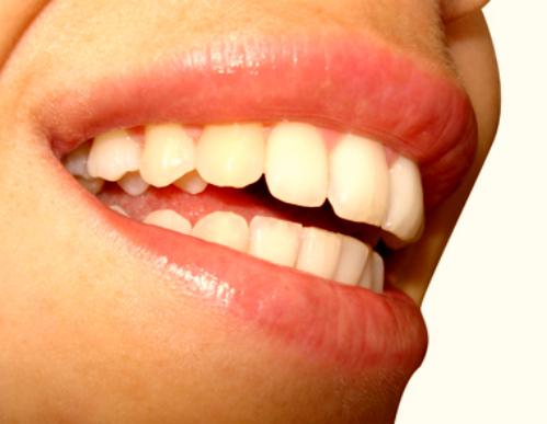 постоянный зуд в зубах