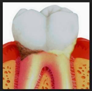 Кариес корня зуба: фото, причины, осложнения, лечение
