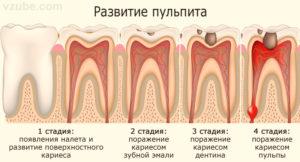 болит зуб после лечения пульпита фото