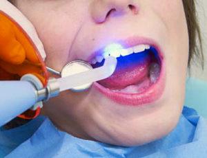 световая пломба зуба фото