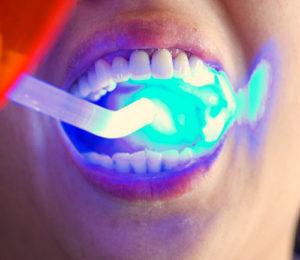 Что такое световая пломба зуба?
