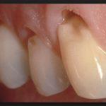 Оголилась шейка зубов