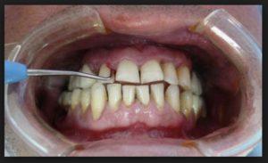 Сильно шатаются зубы: причины, симптомы, лечение