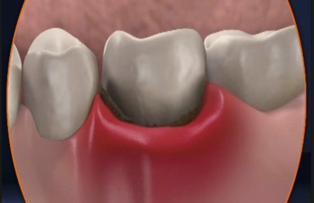 болит десна после пломбирования зуба