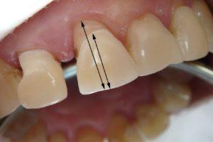 Десна отходит от зуба – что делать?