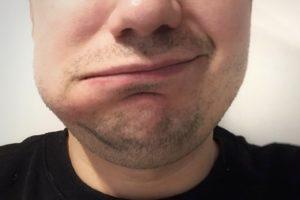 Абсцесс зуба: симптомы, лечение, как себе помочь?