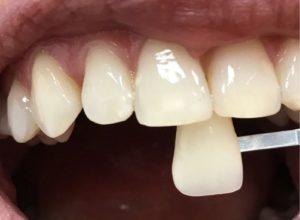 Отбеливание зубов пищевой содой – так ли это безопасно?
