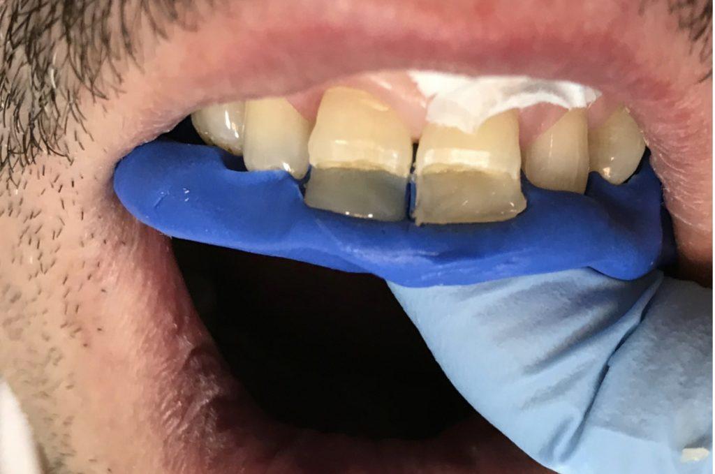 Реконструкция зуба