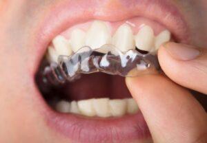 Ортодонтические аппараты для детей и подростков: какой выбрать?